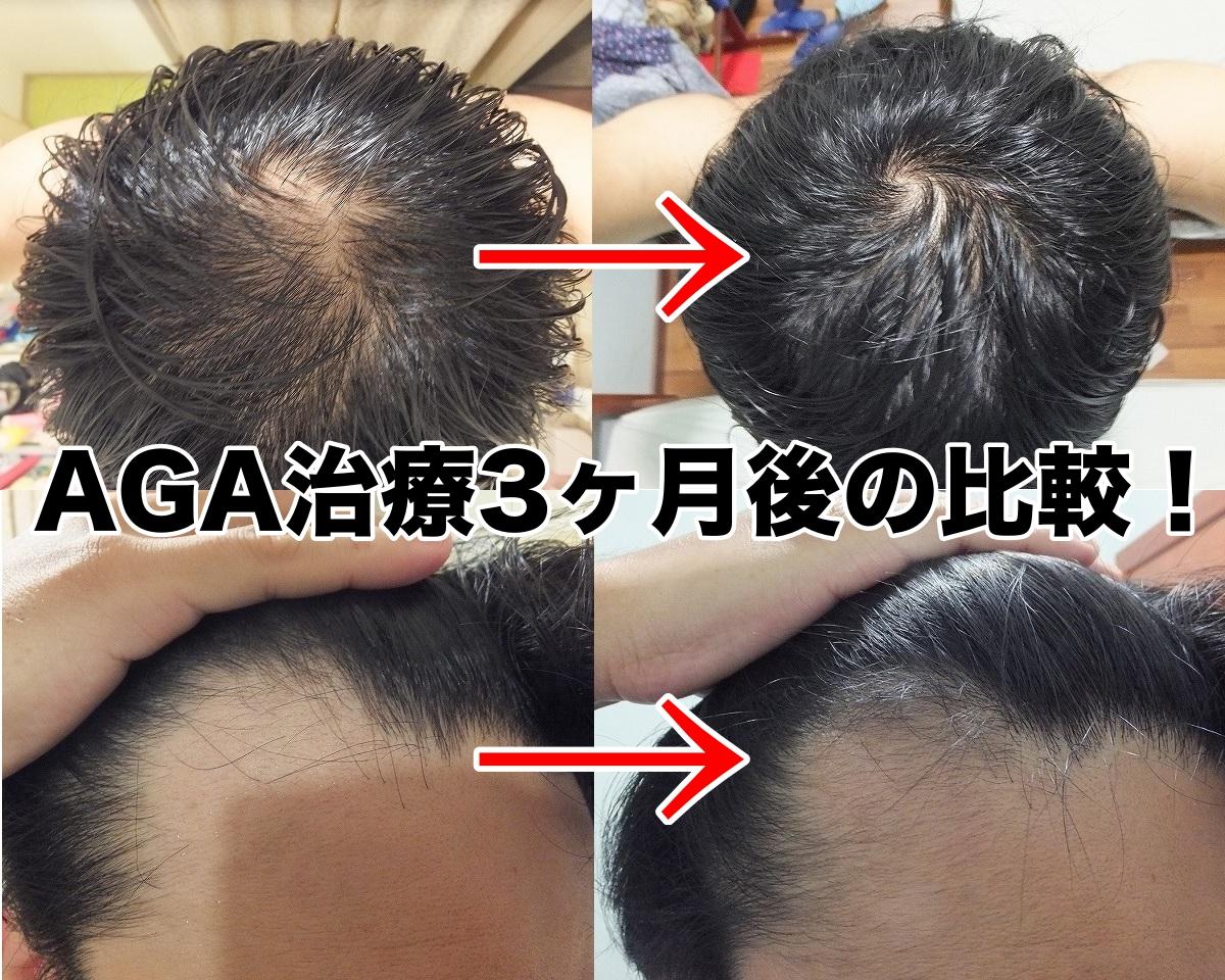 AGA治療開始前と3ヵ月後経過比較写真