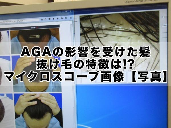 AGAの影響を受けた髪の特徴、マイクロスコープ画像