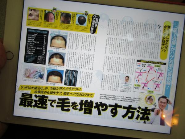 雑誌に載っていたAGA薄毛治療の記事