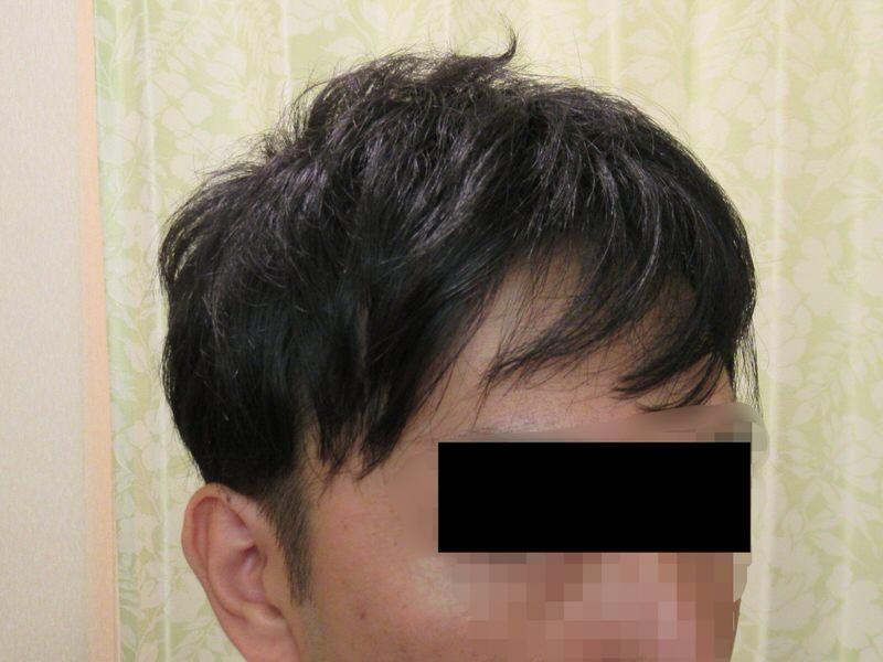 AGA治療2年経過:M字ハゲ