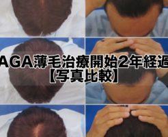 AGA薄毛治療開始2年経過!感謝!【写真比較】
