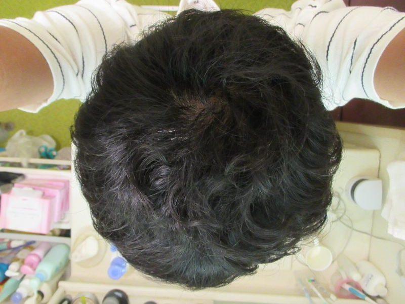 AGA治療2年経過:てっぺんハゲ