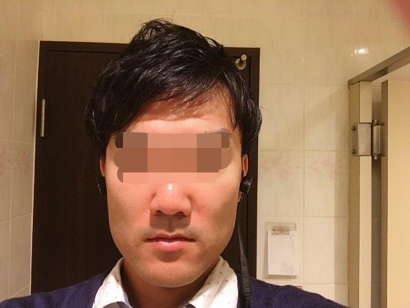 前からの写真:AGA薄毛治療2年2ヶ月.