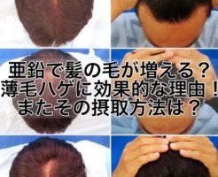 亜鉛で髪の毛が増える?薄毛ハゲに効果的な理由!またその摂取方法は?