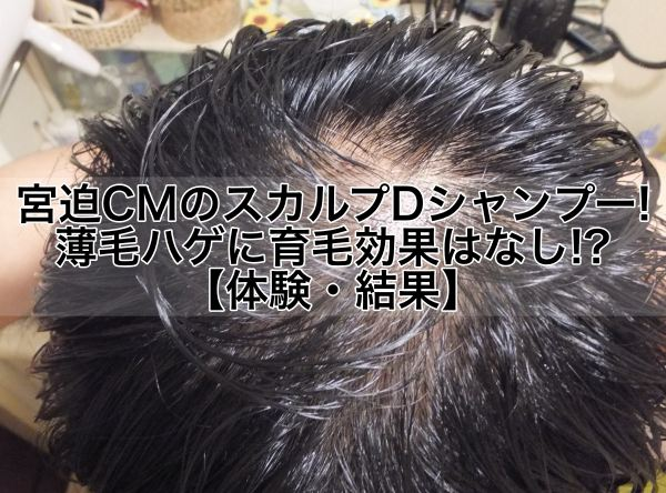 宮迫CMのスカルプDシャンプー!薄毛ハゲに育毛効果はなし!?【体験結果写真】