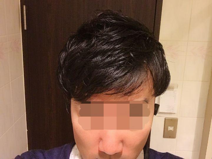 トップの写真:AGA薄毛治療2年2ヶ月.