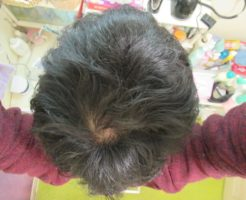 AGA治療開始2年3ヶ月のてっぺんハゲ・髪の毛がパサつく
