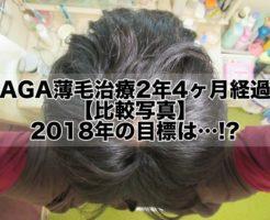 AGA薄毛治療2年4ヶ月経過【比較写真】2018年の目標は…!?