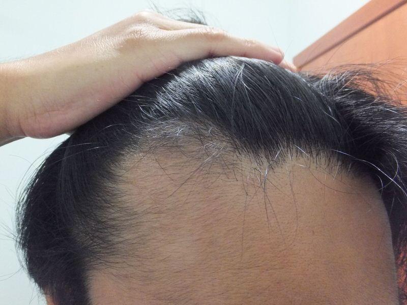 M字ハゲ:前頭部:AGA治療3ヶ月後