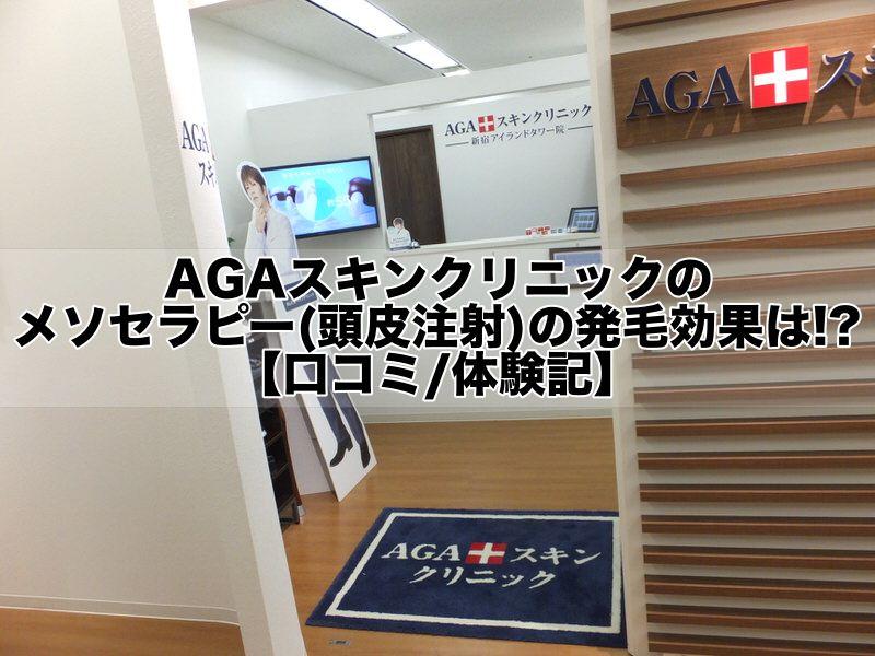AGAスキンクリニックのメソセラピー(頭皮注射)の発毛効果は!?【口コミ:体験記】