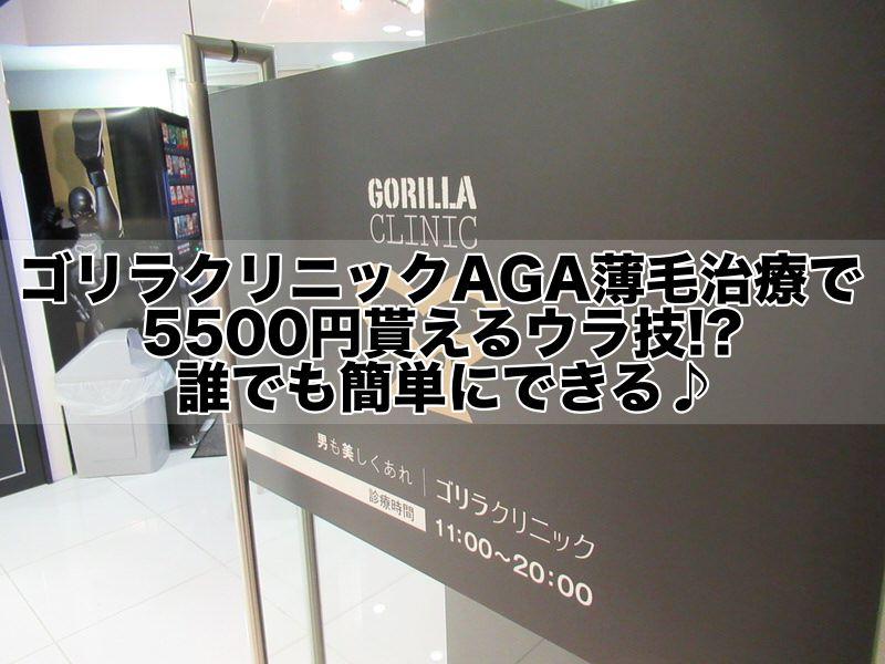 ゴリラクリニックAGA薄毛治療で5500円貰えるウラ技!?誰でも簡単にできる♪