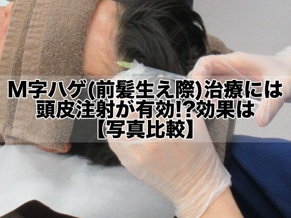 M字ハゲ(前髪生え際)治療には頭皮注射が有効!?効果は【写真】