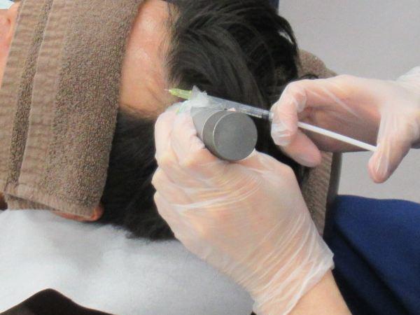 M字ハゲ部分に打つ頭皮注射:AGAスキンクリニック