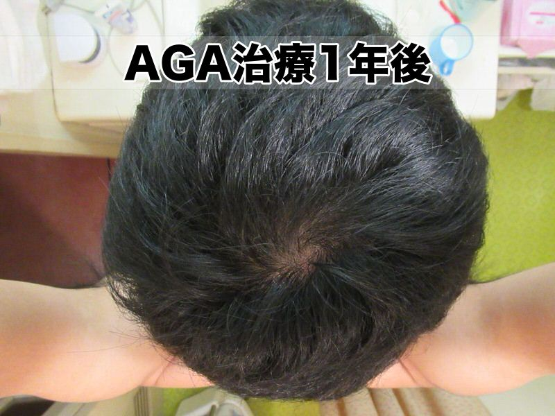AGA治療開始12ヶ月:1年経過・頭頂部てっぺんハゲ様子