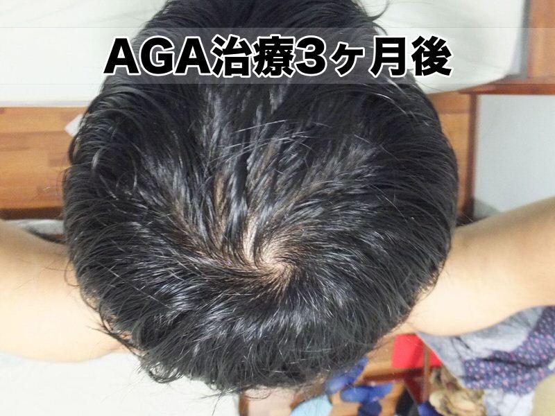 AGA治療開始3ヶ月:2015年12月初め・頭頂部てっぺんハゲ様子