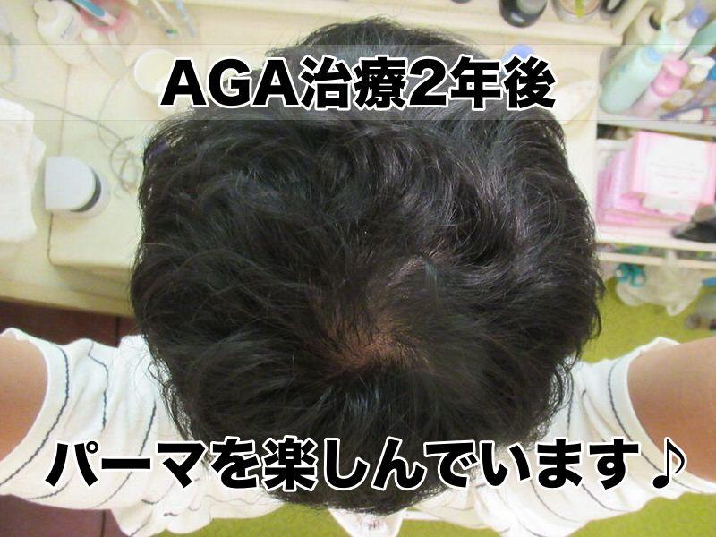 AGA治療開始24ヶ月:2年経過(パーマ)・頭頂部てっぺんハゲ様子