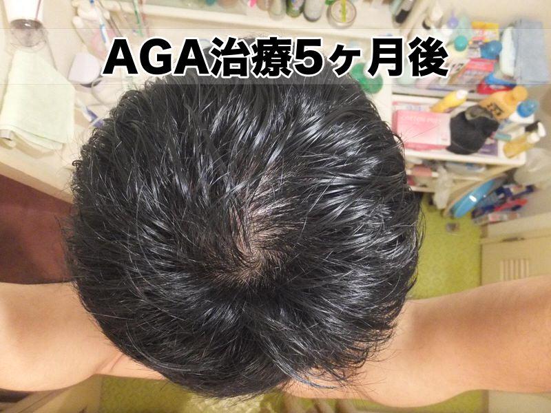 AGA治療開始5か月:2016年1月・頭頂部てっぺんハゲ様子